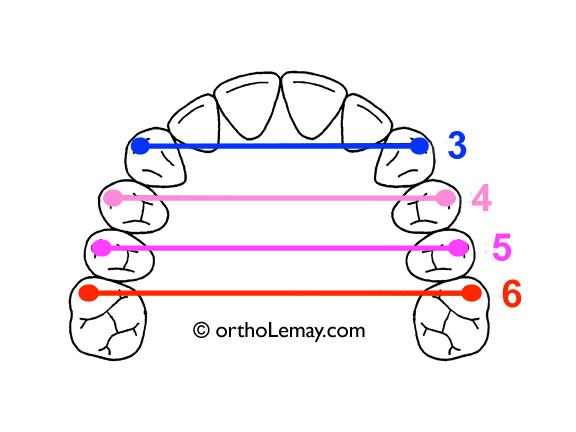 Les extractions de diminuent pas la largeur des arcades dentaires lors d'un traitement d'orthodontie.