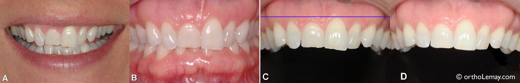 Niveau de gencive et contour gingival inégaux corrigés en orthodontie