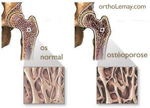 Comparaison de l'os normal et d'un os affecté par l'ostéoporose (hanche)
