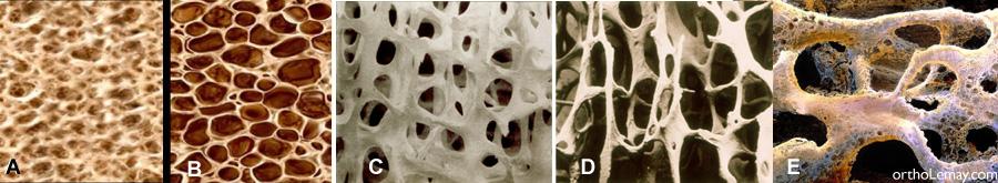 Os normal comparé à de l'os affecté par l'ostéoporose.