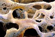 Os affecté par e l'ostéoporose