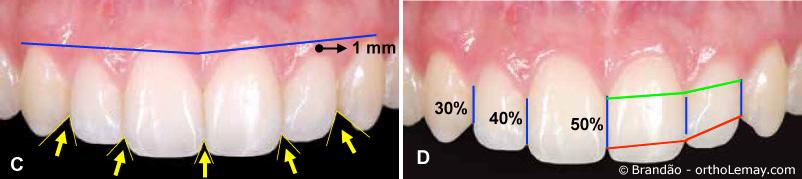 Proportions et positions des dents antérieures supérieures pour optimiser l'esthétique du sourire,