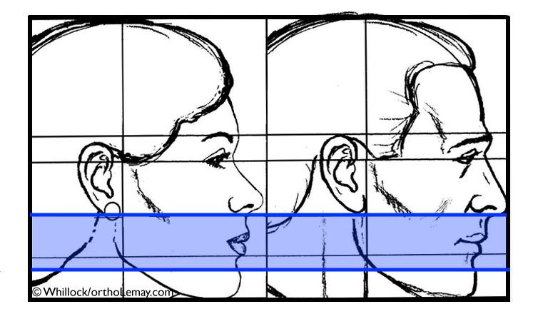 L'orthodontie n'affecte qu'une petite partie du visage entre le nez et le menton.