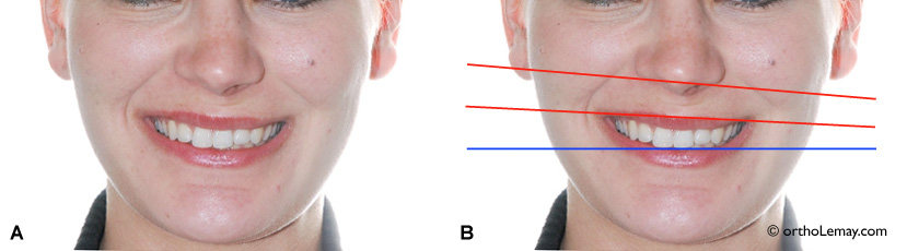 Une asymétrie du nez et menton accentuent l'asymétrie du sourire.