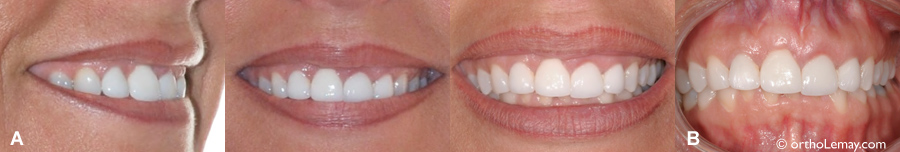 Gencivei négale causant un sourire inesthétique