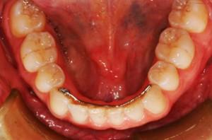Orthodontic retention | Bücco Orthodontie, par vos