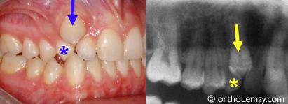 Que Faire Si Les Dents De Votre Enfant Ne Tombent Pas Bücco