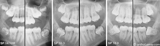 Wisdom Teeth Myths And Realities Bucco
