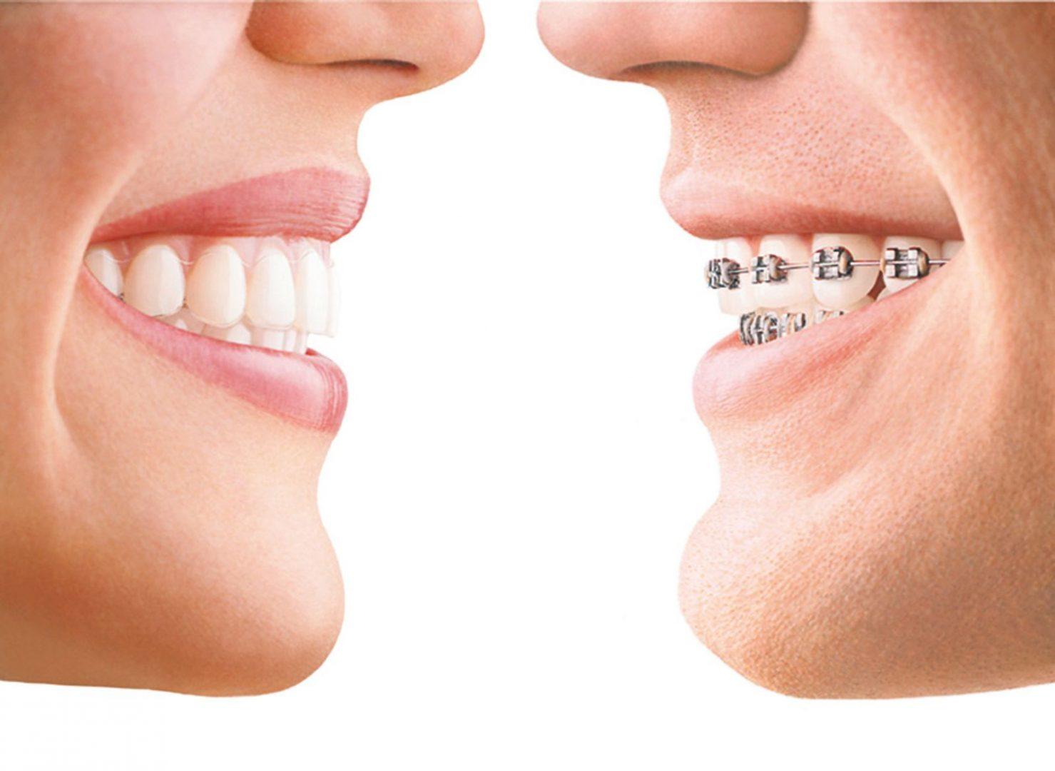 traitement Invisalign versus broches conventionnelles