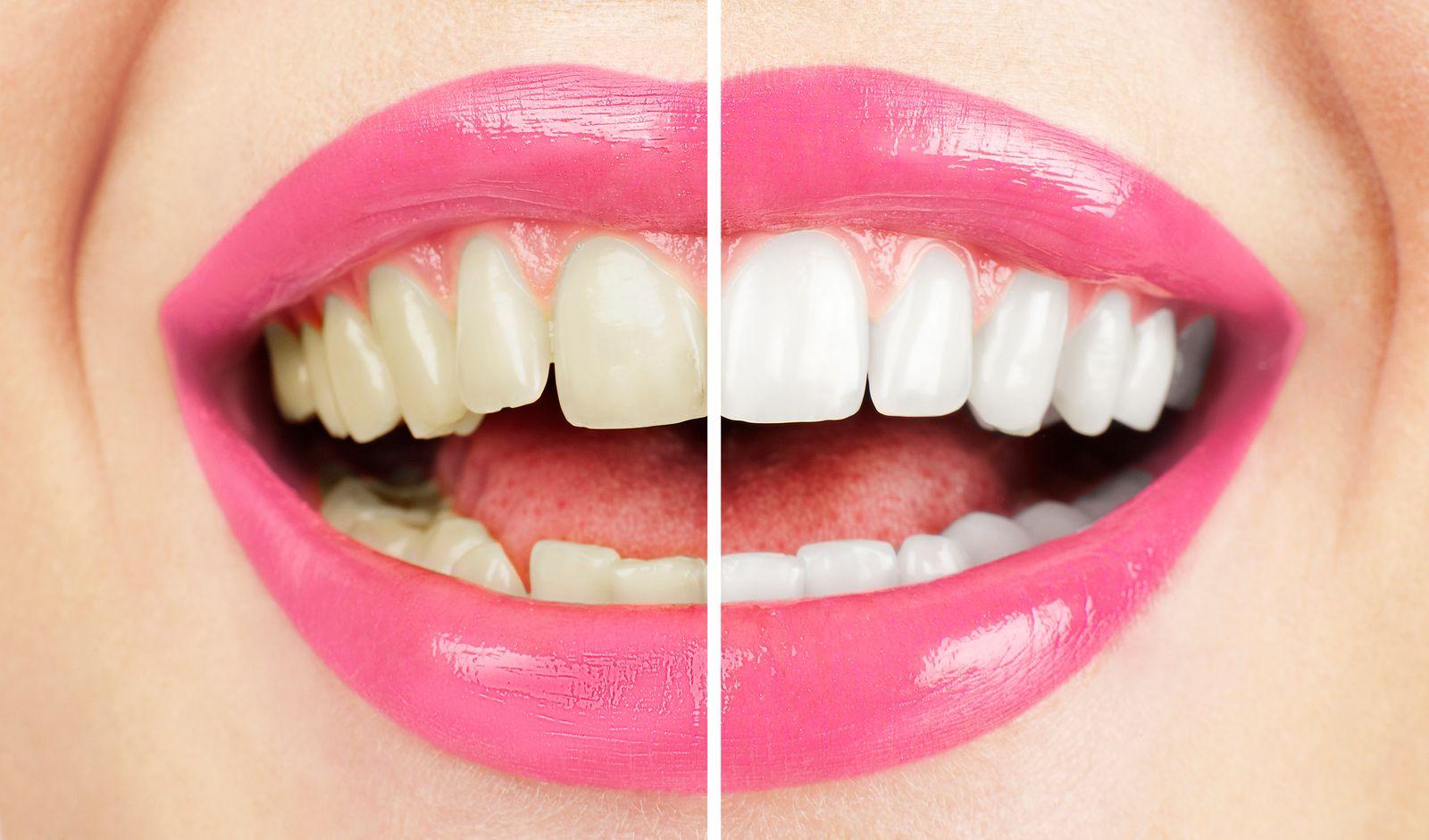 sourire blanchiment dentaire résultat avant/après