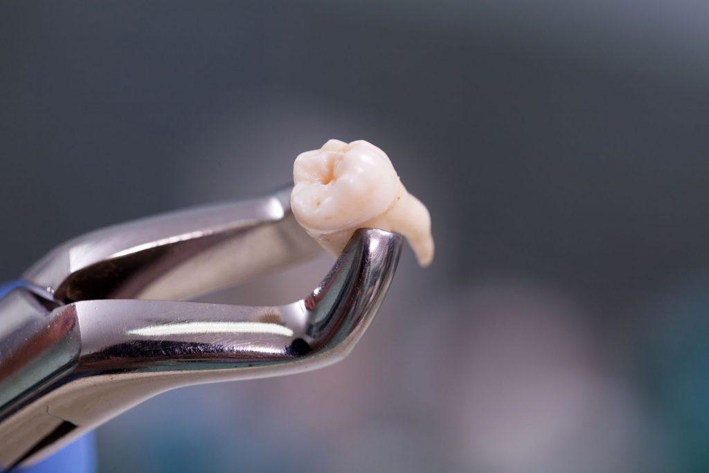 Que devez-vous savoir sur l'extraction dentaire?