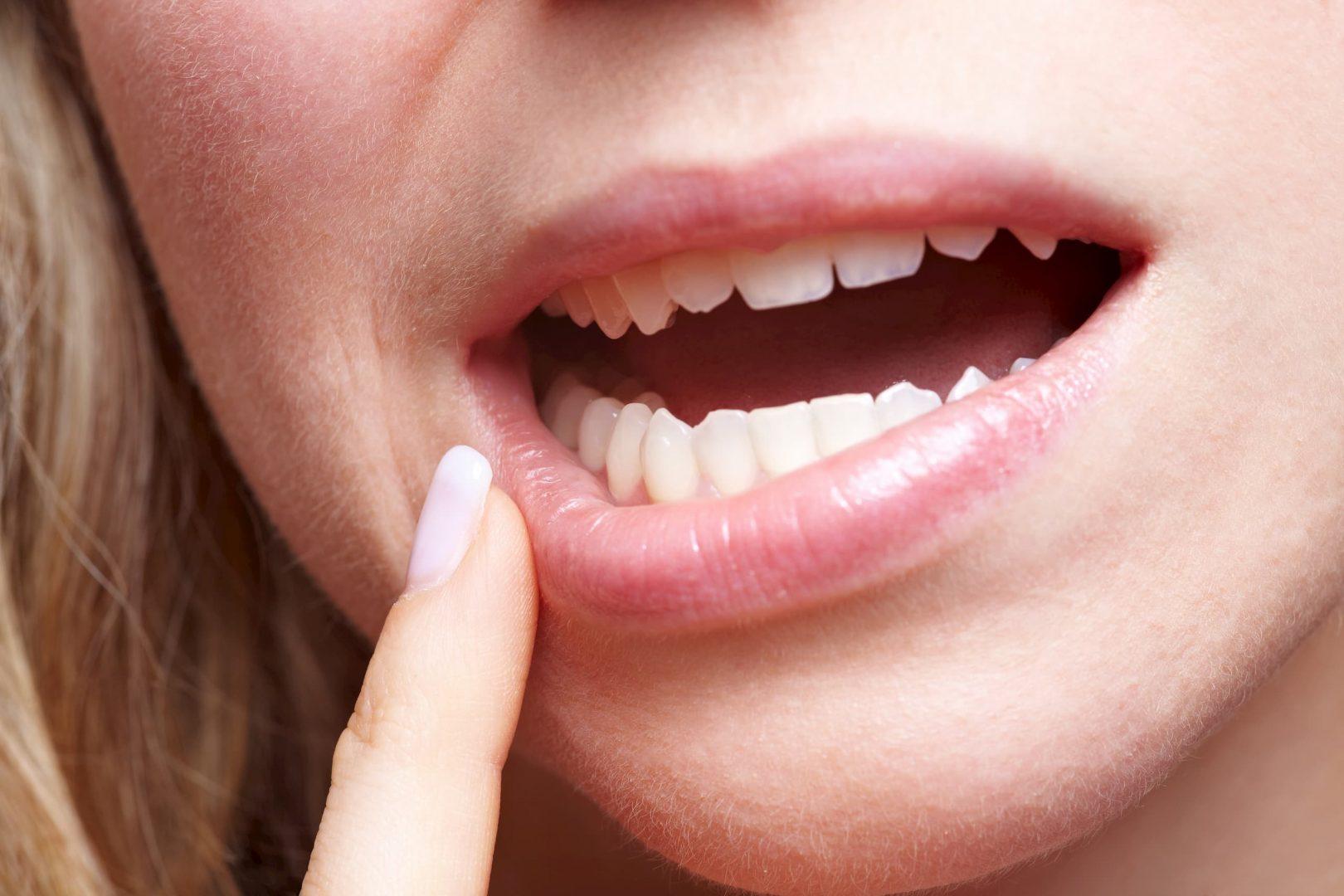 Aphte douleur dans la bouche