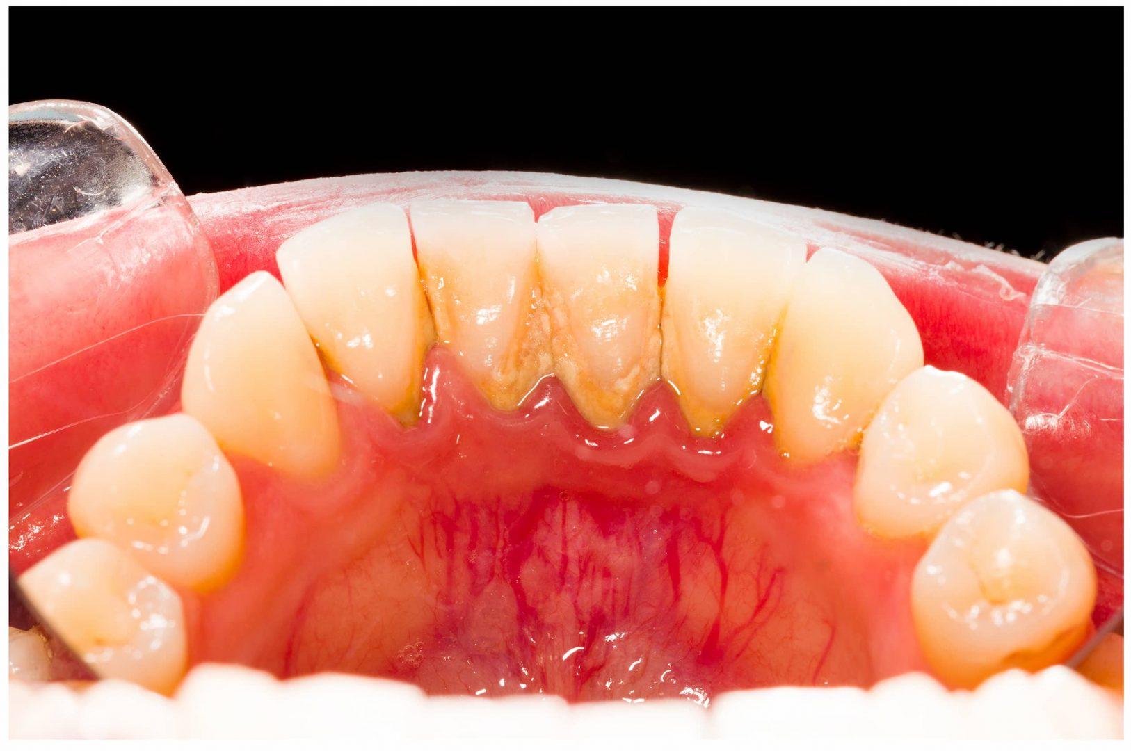 Exemple de gingivite